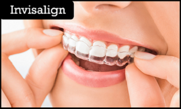 Smile Makeover - DENTOLOGY- The Future of Dentistry